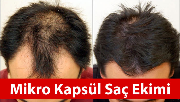 Saç Ekimi ve Ekleme