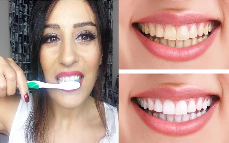 Doğal yolla diş nasıl beyazlatılır?