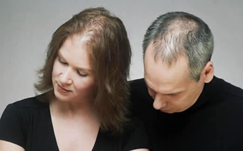 Ceviz yağının saçlara faydası