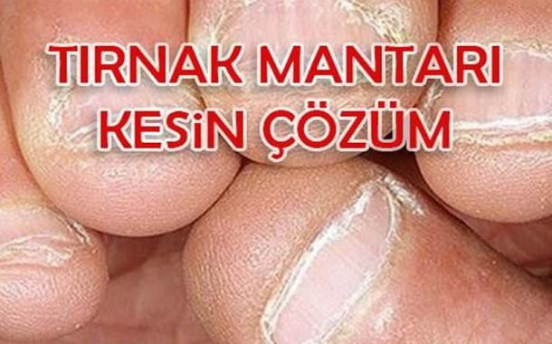 Tırnak mantarının bitkisel tedavisi