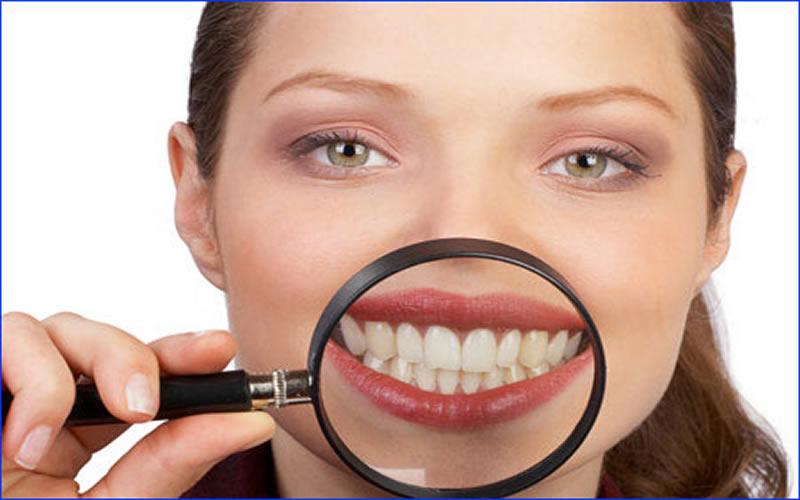 Diş ağrısı ,diş bakımı