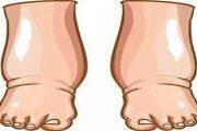 Ayak Şişkinliği