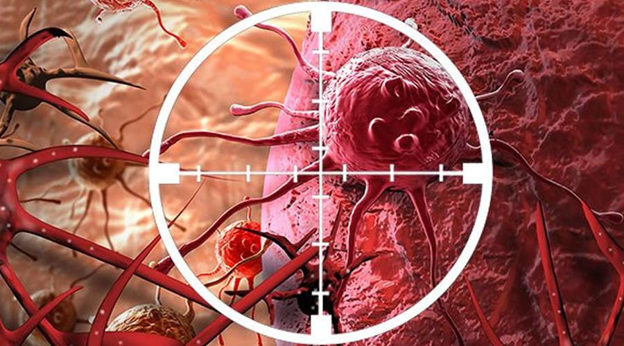 Zerdeçal ile Kanserin Önlemesi