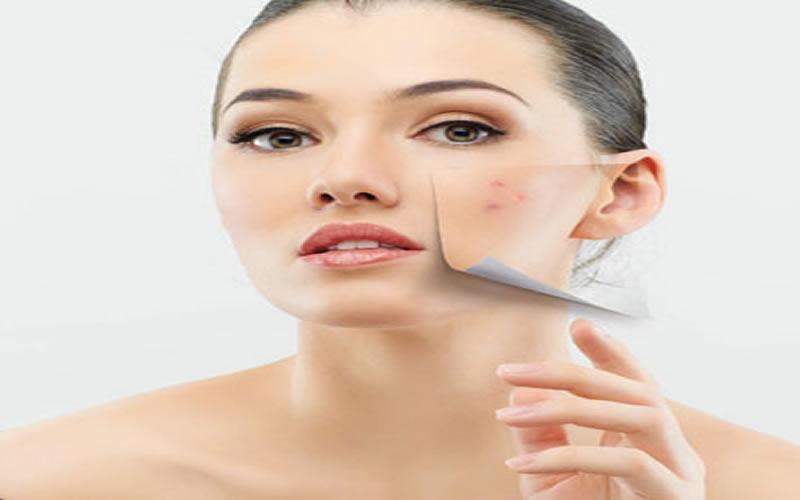 doğal sivilce maske tarifi1