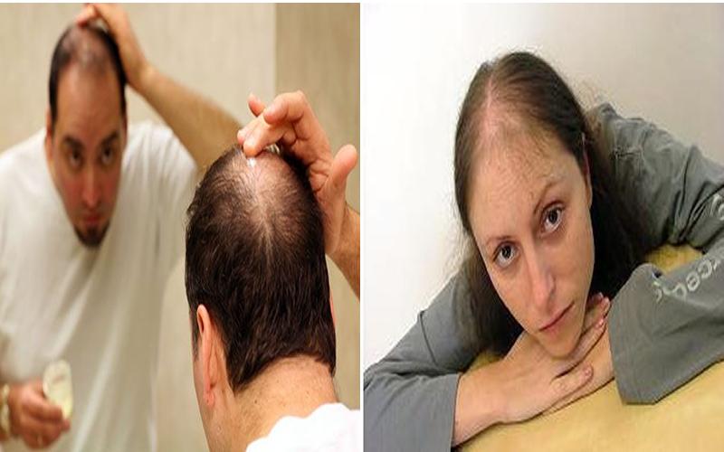 Saçınız mı dökülüyor?